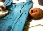 Infant boy undergoing forced genital cutting