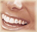 DecoDent Tooth Jewelry