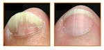 """""""Before"""" and """"After"""" using NonyX Nail Gel"""