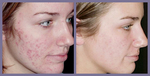 Patient Before and After Laser Scar Treatment