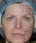 Thermage Mid-treatment
