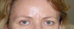Brows and eye lids after Titan treatment