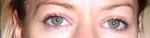 Lower eyelid wrinkles after