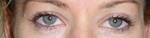 Lower eyelid wrinkles before