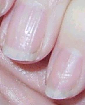 Horizontal Fingernail Ripples