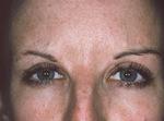 Post-Botox Patient
