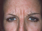 Pre-Botox Patient