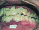 Severe gum inflammation with plaque and tartar