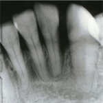 x-ray after using perio Protect