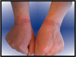 Injury induced through struggling.