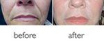 Before and after hyaluronic acid facial fillers
