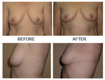 Before and After Photos of Non Surgical Breast Lift Patient