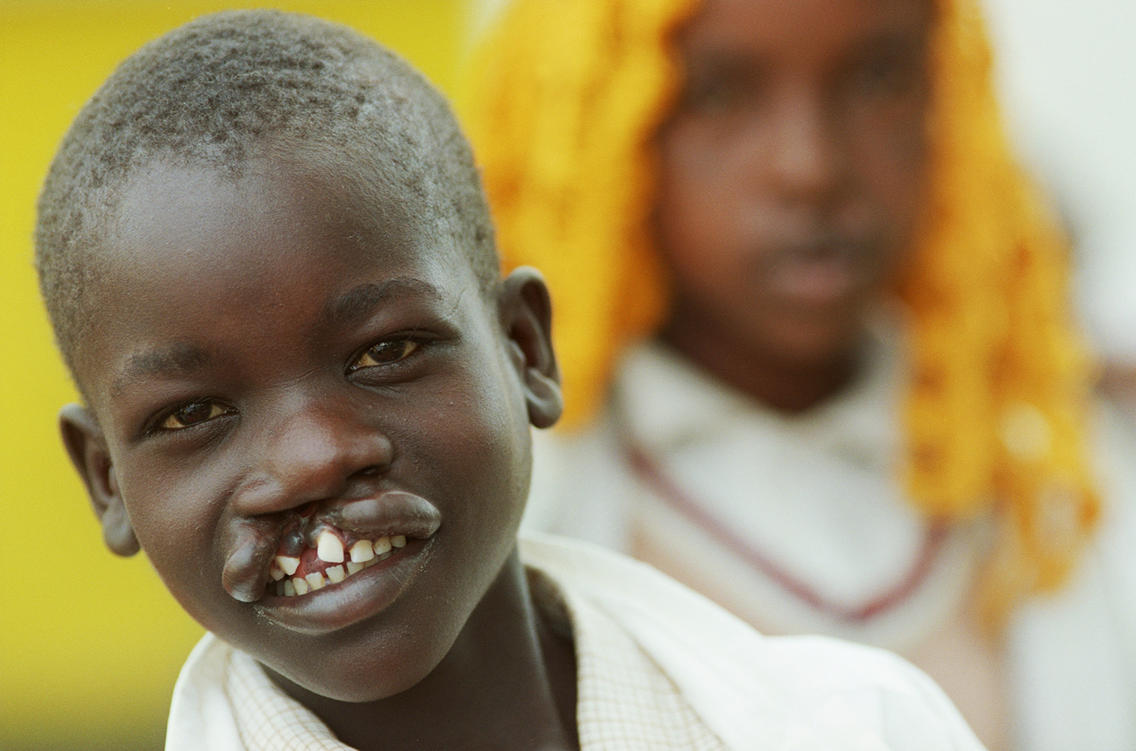 Operation Smile Kenya Child