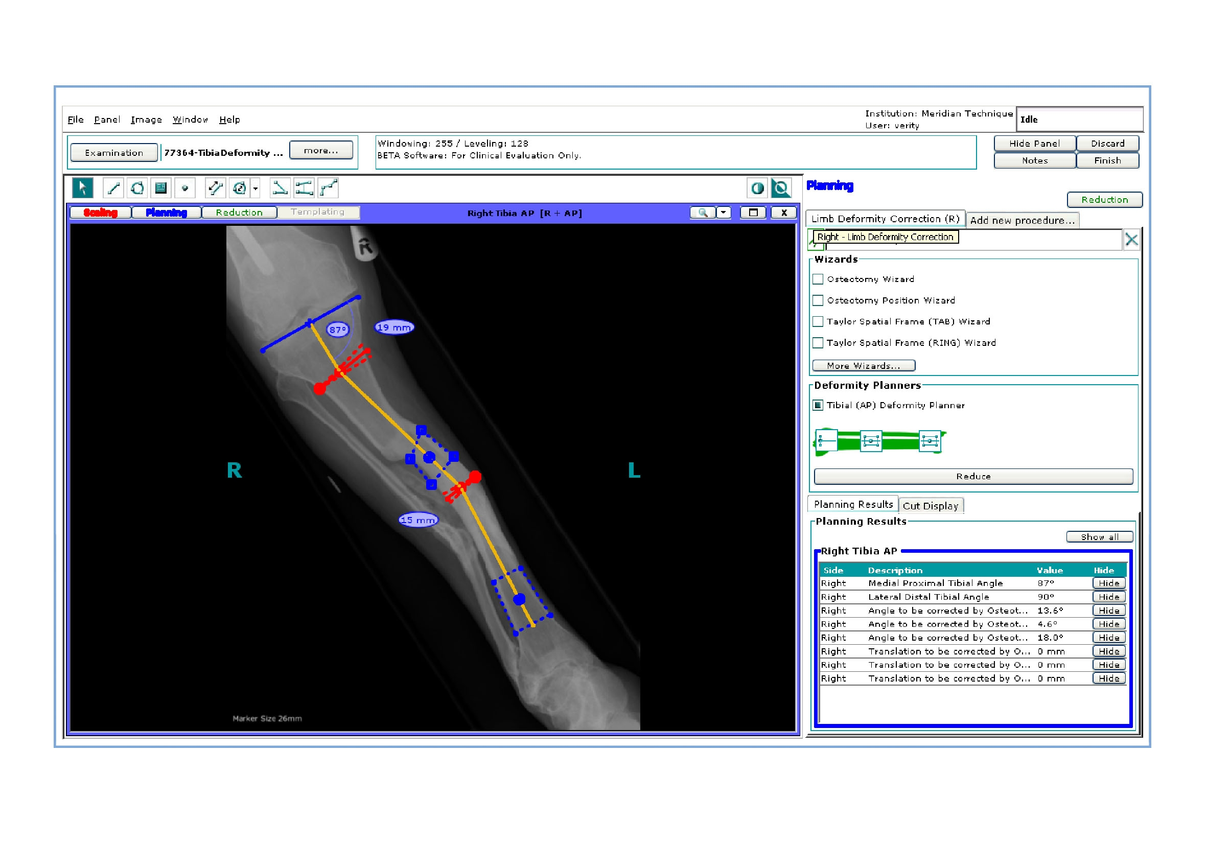 Orthoview to showcase cutting edge software at rsna 2007 for Orthopedic templating software