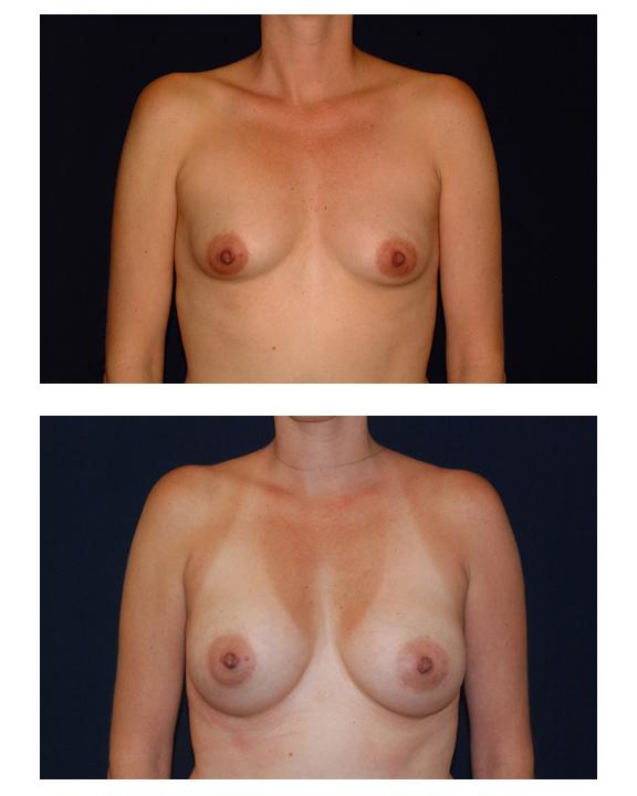 Implants breast feel of