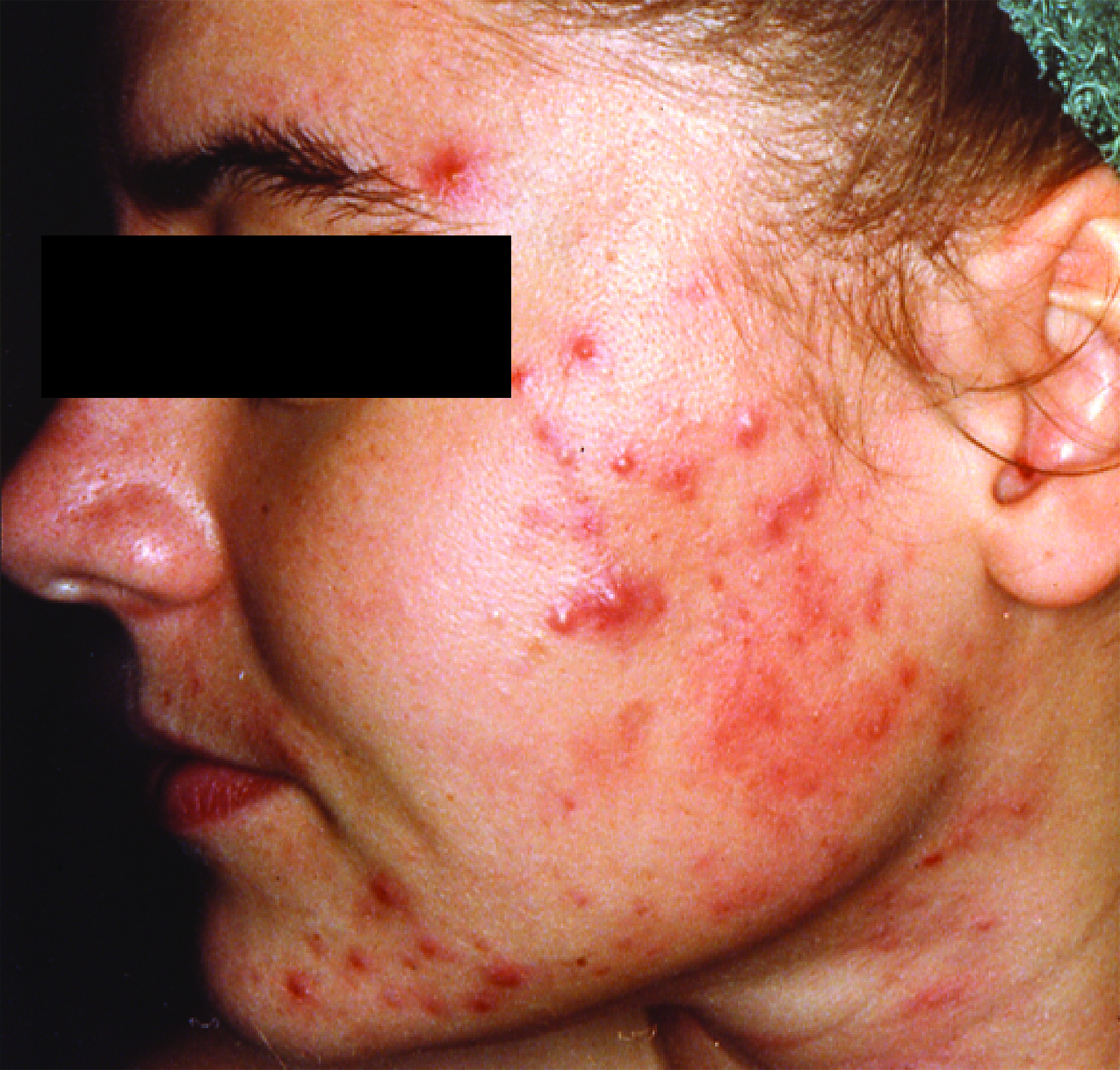 Beaura spa announces amazing results from isolaz acne for Acne salon treatments