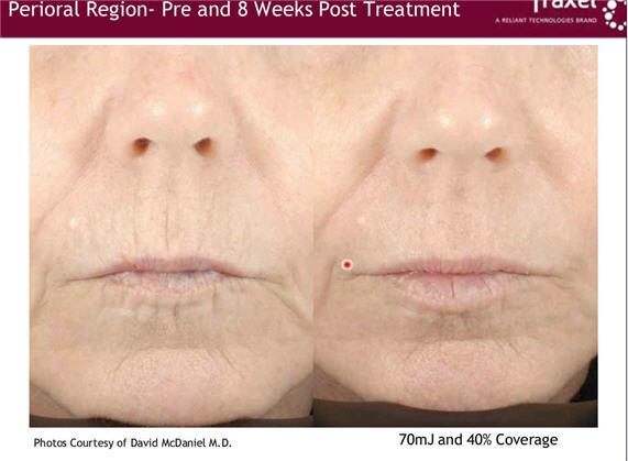 Irvine Dermatologist Begins In Office Clinical Studies