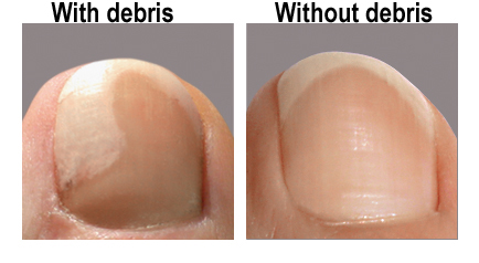 "Discolored Toenails ""before and after"" using nonyx"