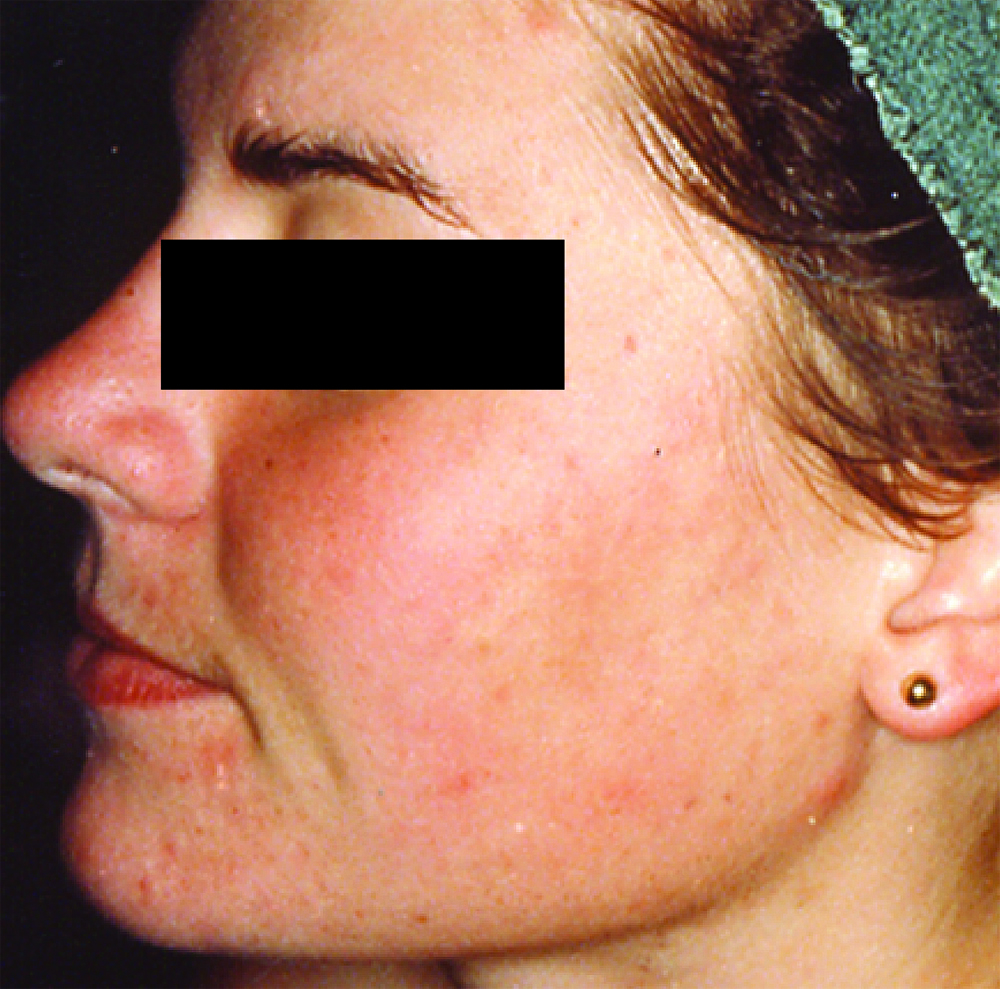 0 acne laser treatment new Jersey A Is Acne A Big Deal