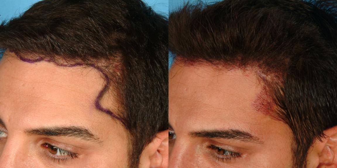 New NeoGraft™ Device Improves Hair Transplants