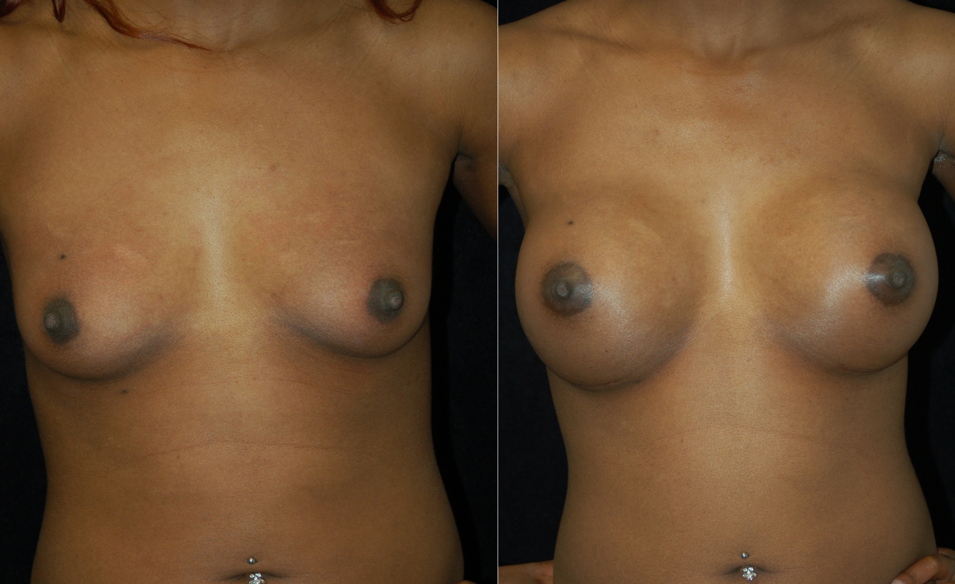 breast implant surgery san jose jpg 853x1280