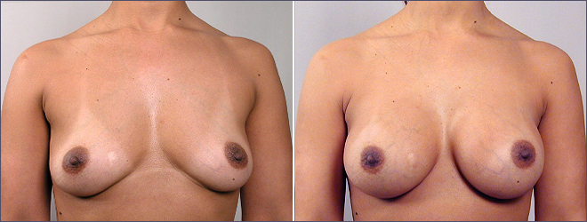 breast augmentation new jersey doctors