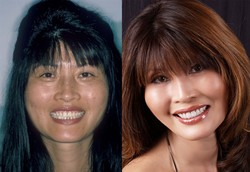 plastic surgery, extreme makeover, hair style, skin care,