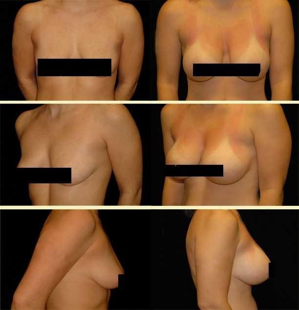 Breast worth augmentation fort