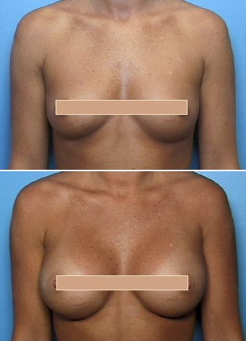 Atlanta breast enhancement