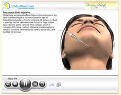 3D Animation of Liposuction Procedure