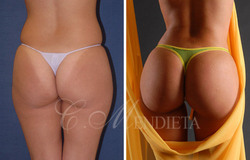 Butt Augmentation before and after photos