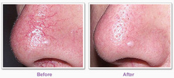 Results of Veinwave treatment at Vein Center and CosMed St. Louis