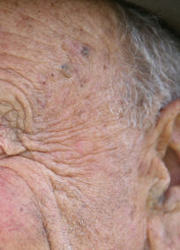 gI 0 actinicman Orange County Derm Lenore Sikorskis Patients Save Face with Actinic Keratosis Peel