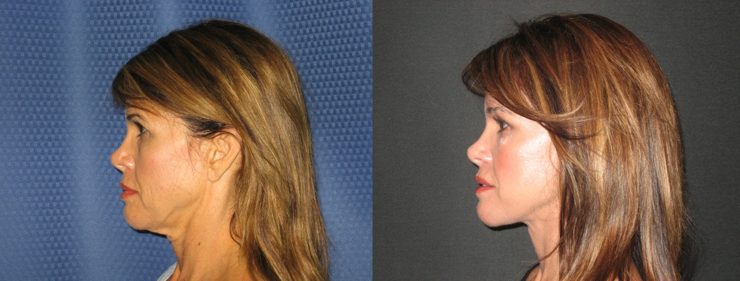 the pros and cons of plastic surgery Millions of people, both male and female, undergo cosmetic surgery, also called plastic surgery, every year modern plastic surgeons can alter almost any.