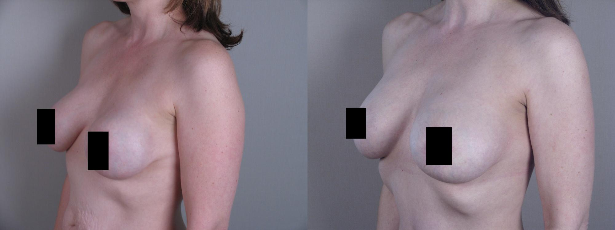 breast implant surgeon new jersey