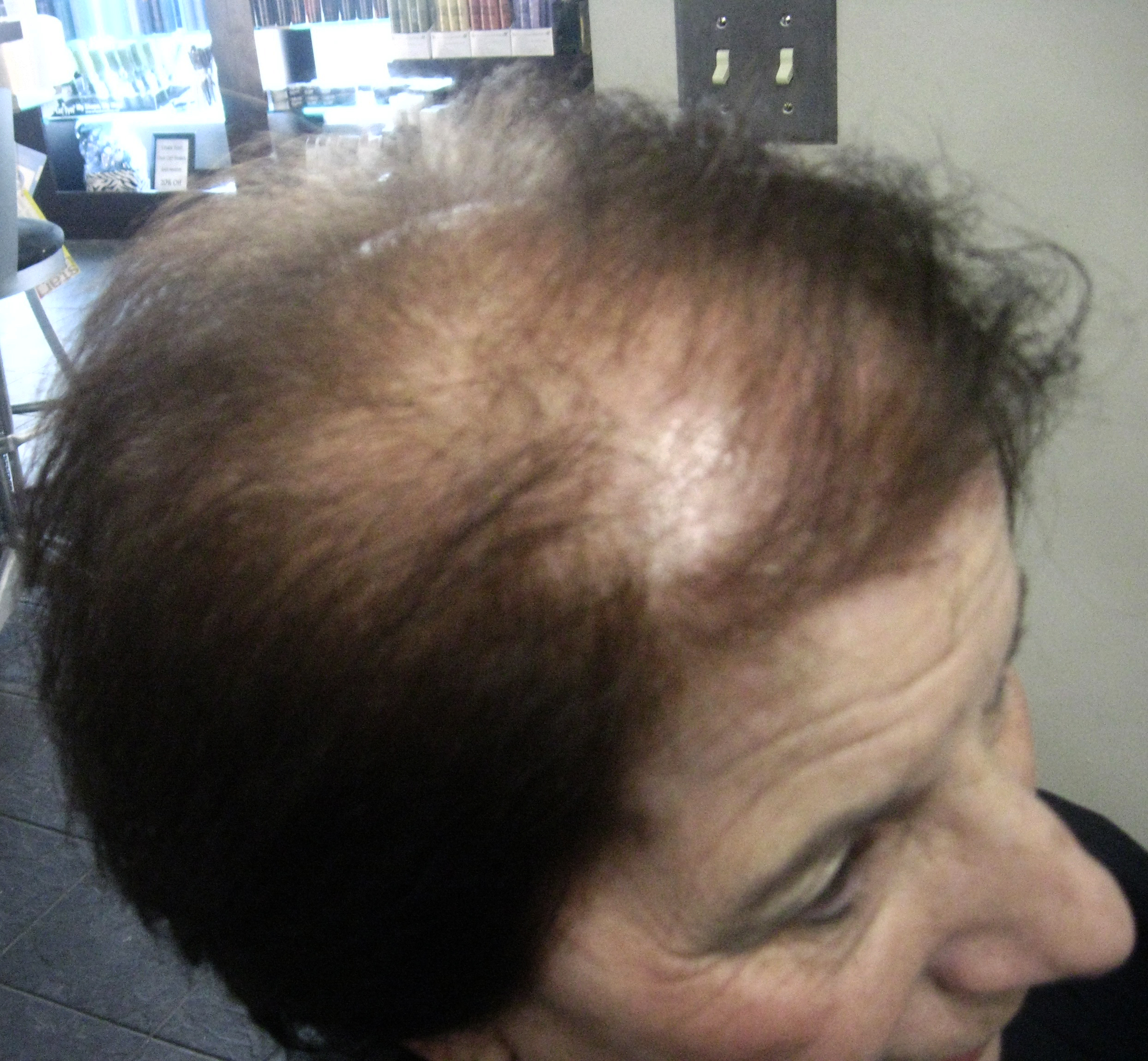 Over 30 Million Women Suffer From Thinning Hair Now New