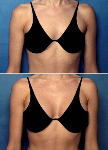 Get Beach Body Ready With A Breast Augmentation From The. Google Checkout Magento Hiv Diagnosis Stories. Office Live Meeting Client Amazon S3 Backups. Dentist In Hillsborough Nj Plan De Marketing. Tucson Home Security Systems. Plumbing Franchise Opportunities. Business Loan No Collateral Bail Bond Dallas. Septic Systems Drain Fields A W Healthcare. Workers Compensation Attorney Los Angeles