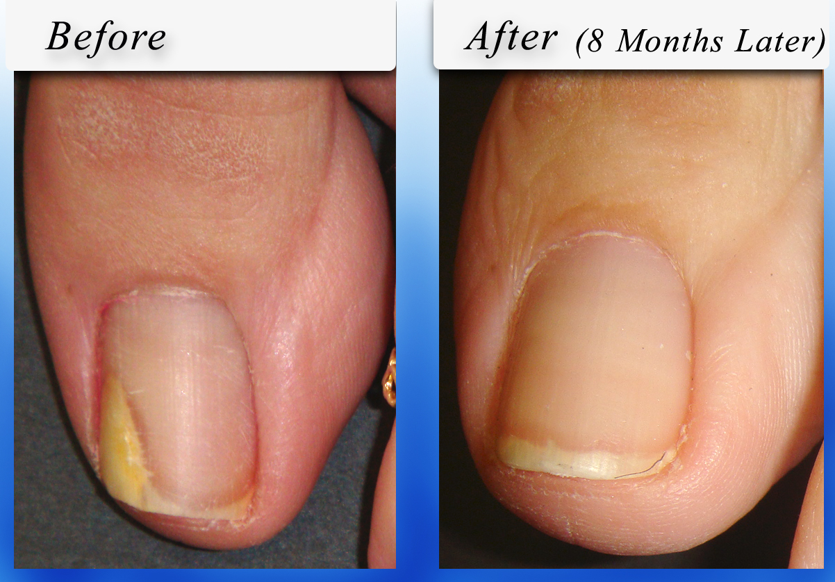 Yellow Toenails - Does Toenail Fungus Always Cause It? | SteriShoe ...