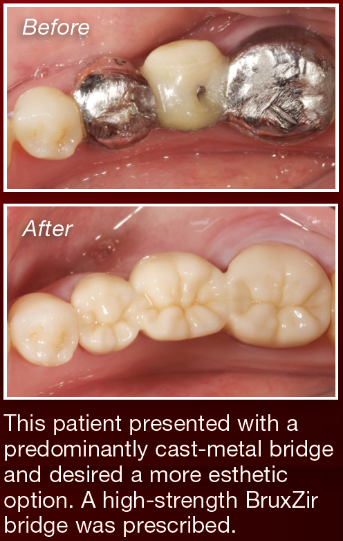 Strength Based on Science Drives Glidewell Dental Lab's ...
