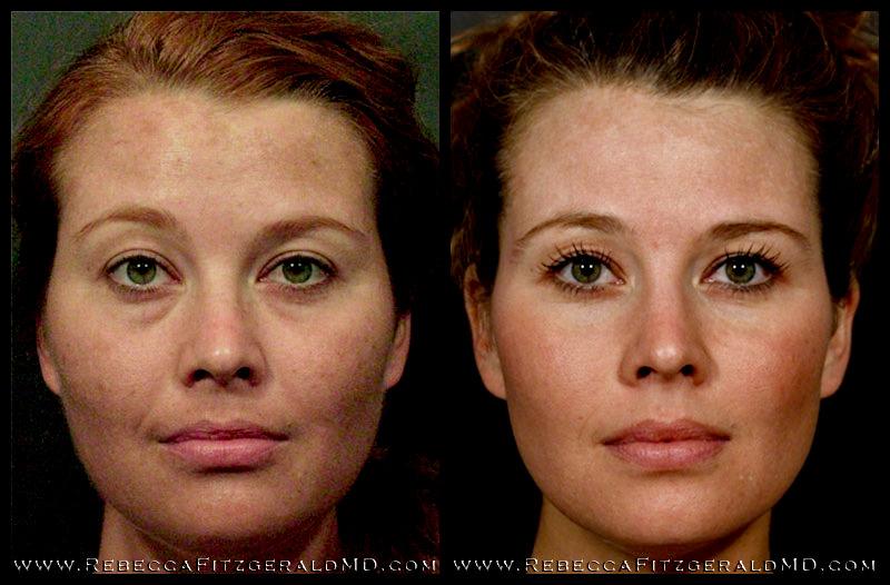 Sculptra Bezoperacyjny Lifting Dermatologia Estetyczna