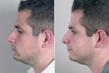 rhinoplasty New Jersey image