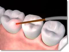 Union Street Dental Care First San Francisco Dentist To