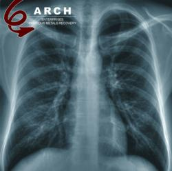 X-ray refining from Arch Enterprises