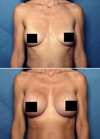 breast implant atlanta
