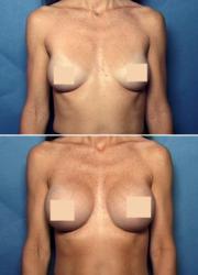 Breast Augmentation Atlanta