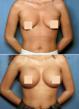 Atlanta Breast Augmentation