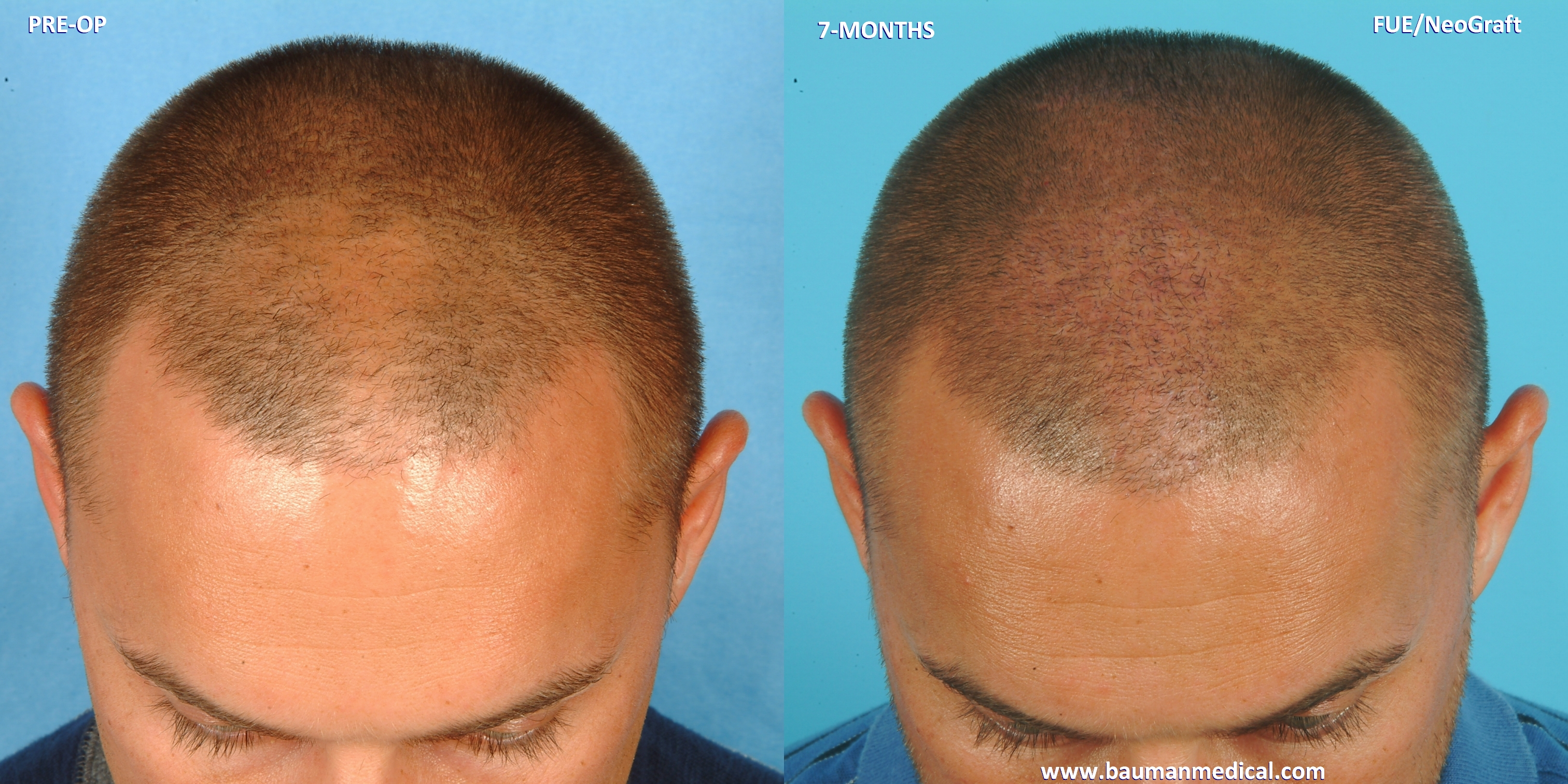 Hair Restoration Los Angeles