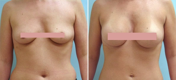 breast surgeon smyrna georgia jpg 1500x1000