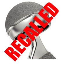 DePuy ASR Hip Replacement Recalled