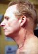 Next Handiwork Throat Cancer Scar